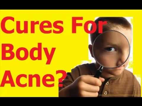 Cures For Body acne   Body acne remedies