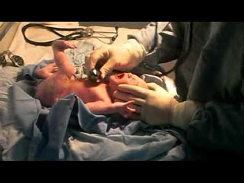 Parto y Reanimacion de un bebe