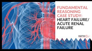 Heart Failure/Acute Renal Failure: FUNDAMENTAL Reasoning Case Study