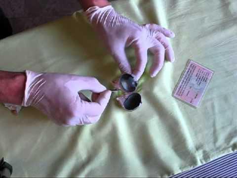 La investigación de la hiel de la lamblia