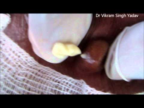 Sebaceous Cyst Behind Ear Pinna
