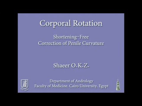 Penile Curvature: shortening-free correction by Co