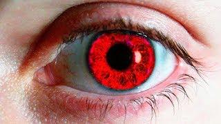 Những Màu Mắt Hiếm Nhất Trên Thế Giới. Cách Bạn Có Thể Thay Đổi Màu Mắt Tự Nhiên