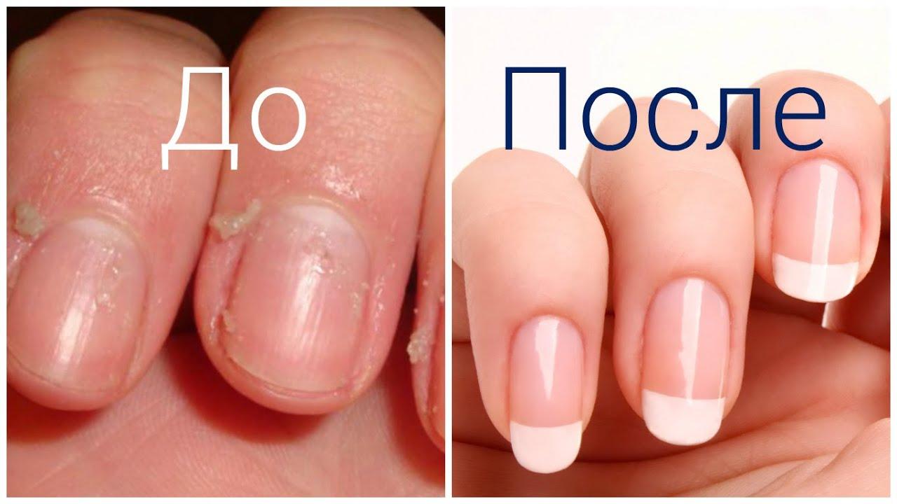 Как сделать чтобы ногти выросли за 1 день