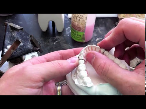 Bending labial bow from 4-4 on Mandibular Hawley