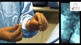 Live Carotid Artery Stenting