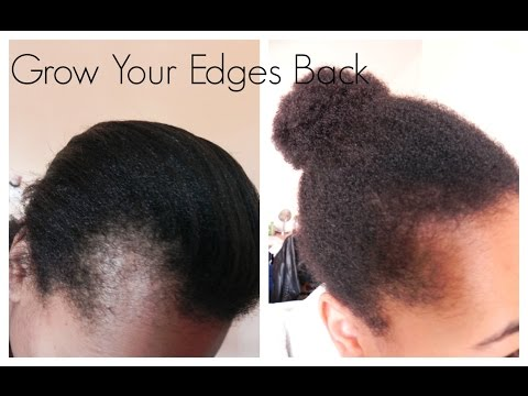 Get Those Edges Back   How I Grew Out My Edges And Bald Spots