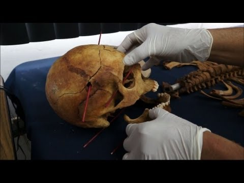 Extended Version: From Guatemalan Soil, Unearthing Evidence of Genocide