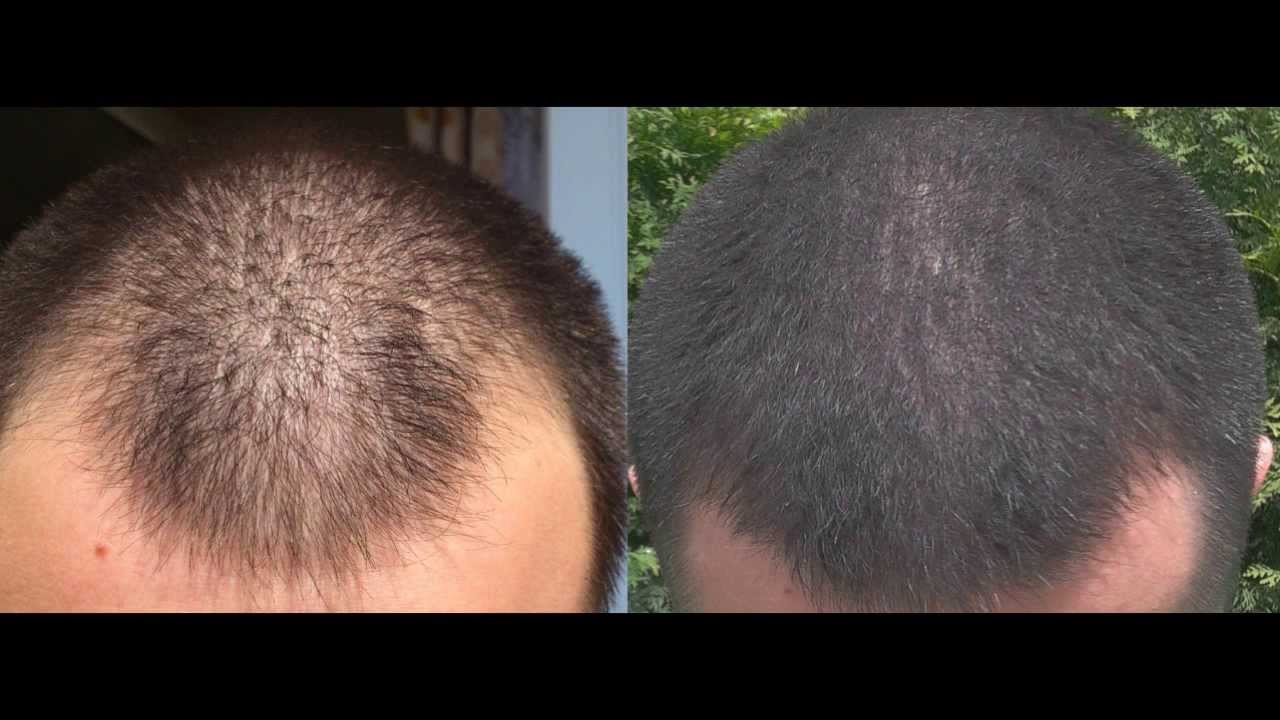Propecia receding hairline before and after