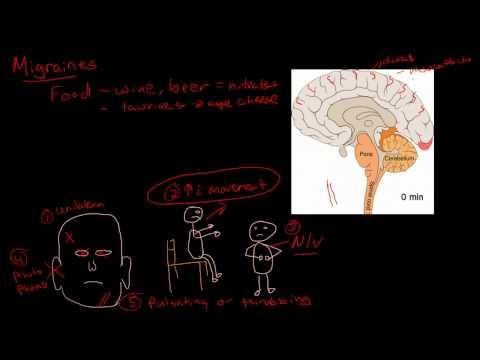 Migraine pathophysiology thumbnail