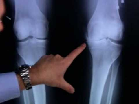 FDA Approves Genzymes Synvisc-One for Osteoarthritis of the