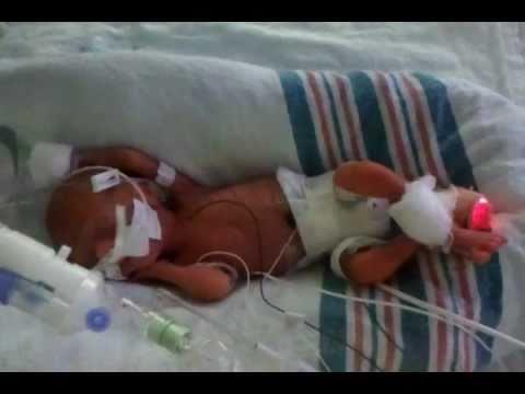 25 week old preemie on ventilator - YouTube