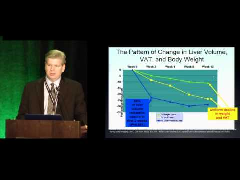 The Difficult Liver in Bariatric Surgery