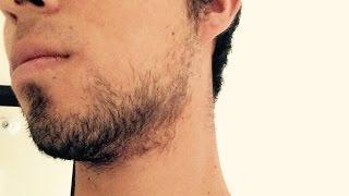 Resultados | Minoxidil para crecer barba