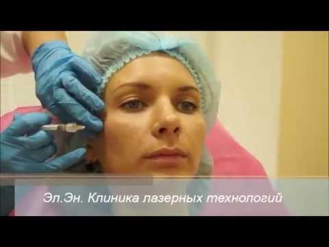 Контурная пластика, инъекции гиалуроновой кислоты
