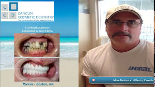 Cancun Dentist - Cancun Cosmetic Dentistry - German Arzate