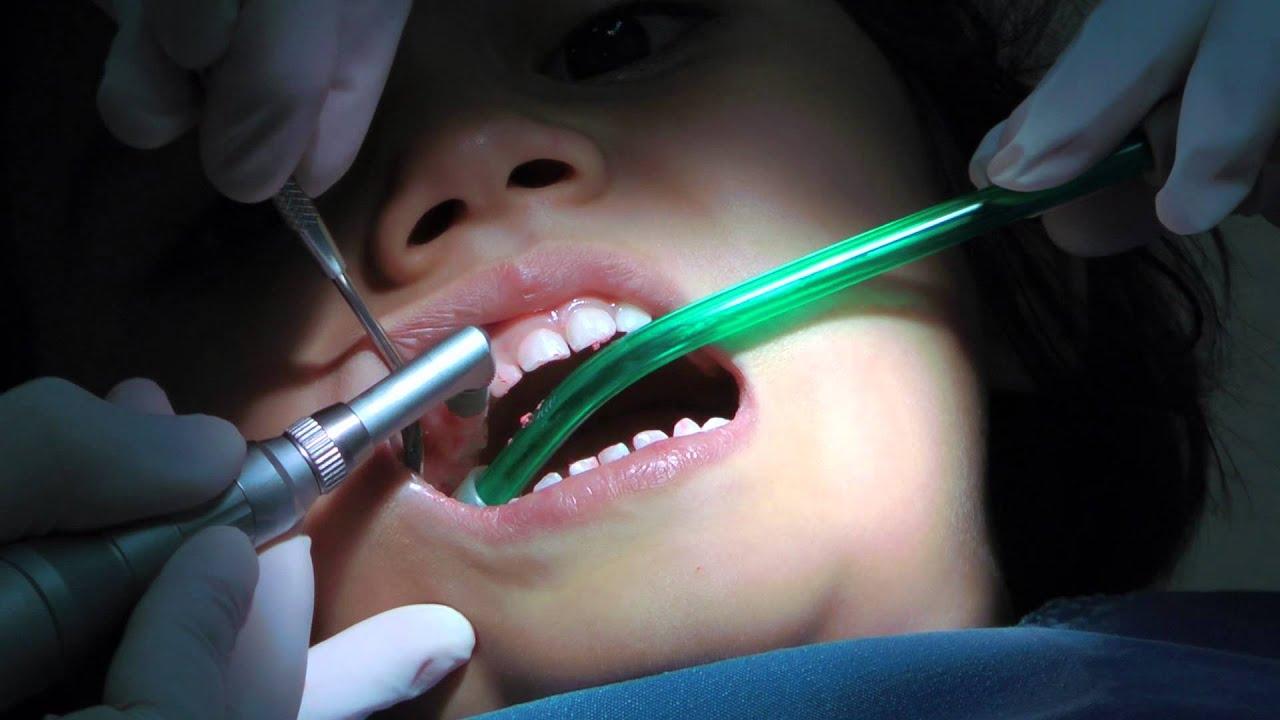 Dental Drill Tooth 1st Dentist Visit afte...