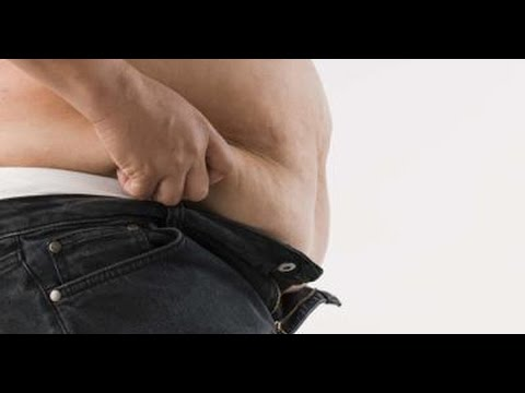 Male Abdominoplasty After Weight Loss Bellevue WA  - Dr. Brian Windle