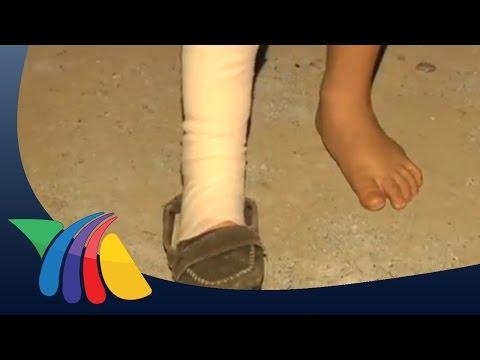 Cae poste a niño de 10 años en Juárez | Noticias de Nuevo León
