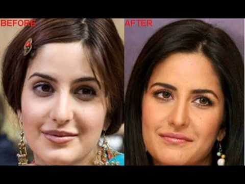 bollywood stars plastic surgery Music Videos