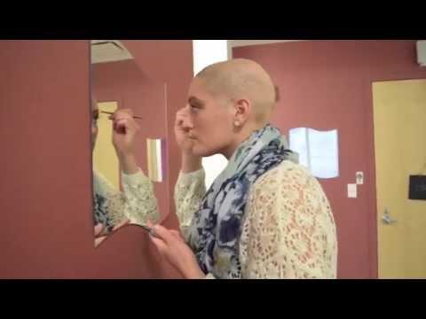 Alexandra Coppola Alopecia Story