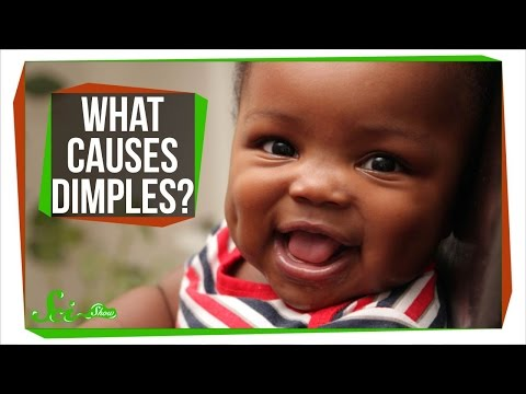 What Causes Dimples?