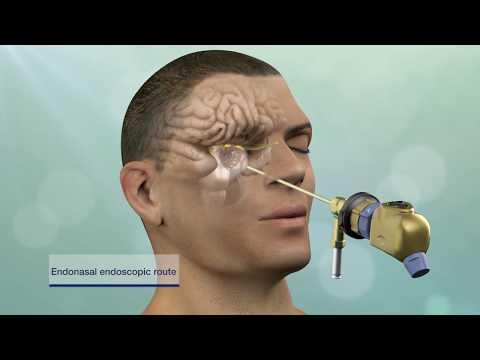 Keyhole Brain Tumor and Skull-Base Surgery
