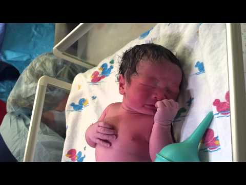 Birth Of My Son By C Section Cesarean Baby Delivery Full Hd video