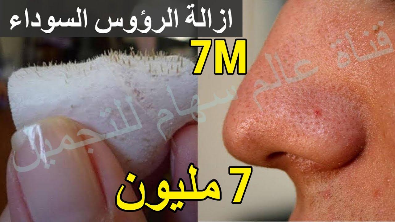 خلطة إزالة الرؤوس السوداء في الأنف ومن الوجه باكمله في ثلاثة دقائق فعالة مضمونه مجربة مراراً وتكرارا