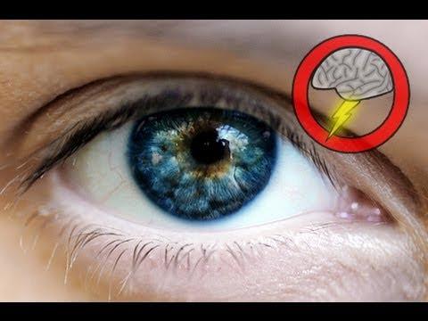 Eye Precursor Grown In Lab (Brainstorm Ep81)