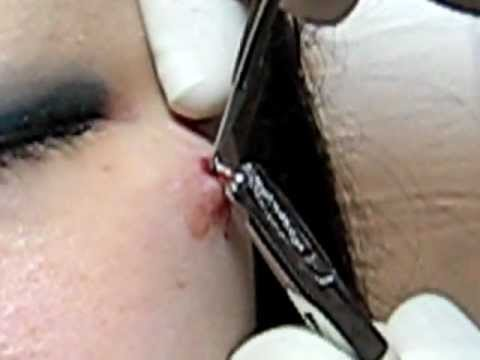 BEFORE YOU GET A MICRODERMAL PIERCING - YouTube