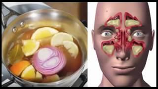 Débarrassez-vous des sinusites en quelques secondes avec ce remède maison en utilisant seulement ces