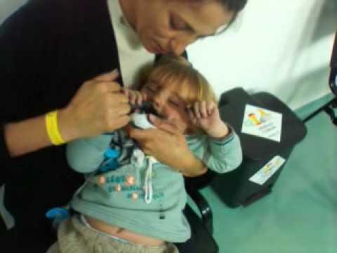 Bruno apos tomar acetona - Tratamento Carvao