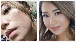Sudden Sandy Skin Texture- Remedy | Kryz Uy