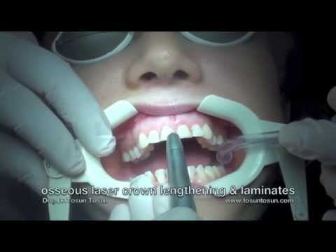 Gummy Smile Treatment: Osseous Laser Crown Lengthening & Laminate Veneers