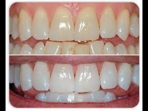 C ómo BLANQUEAR los DIENTES en 3 PASOS / Natural Teeth Whitening