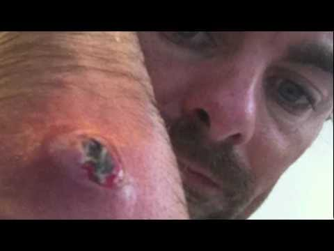larva of insect inside a human arm Music Videos