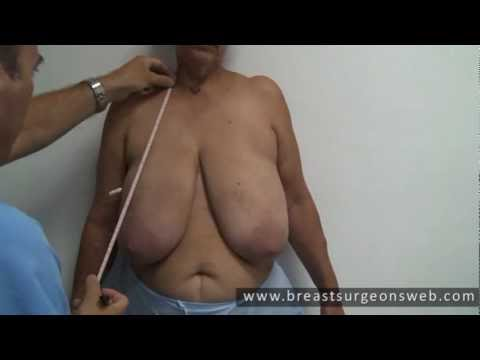 Gigantomastia (Macromastia) and Breast Cancer