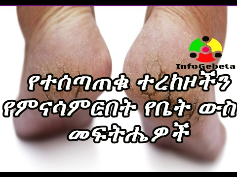 Ethiopia Health Tips - Cracked heels and its home made solutions