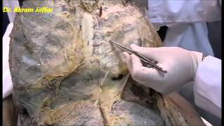 Thoracic wall - dissection