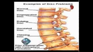 حصريا.. علاج أمراض المخ والأعصاب والعمود الفقري مع الدكتور أيمن أحمد عنب