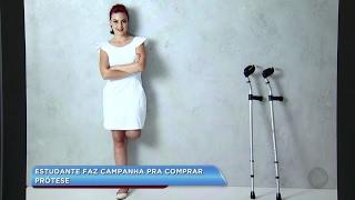 Jovem que teve perna amputada em acidente faz campanha pra comprar prótese