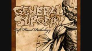 Watch General Surgery Capricious Provisional Cadaver Grater video
