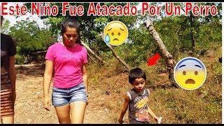 8-El Niño Esteban Les Cuenta Cuando Fue Atacado Por Un Perro,🐶Cuando Iba Para La Escuela😭Adobes-P8