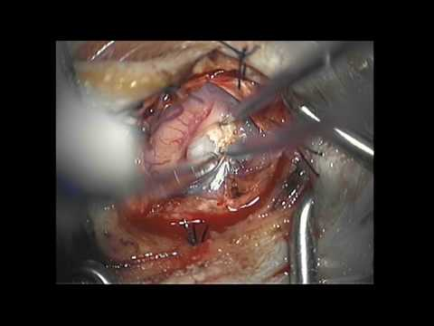 Microsurgical Resection of a Brain Tumor