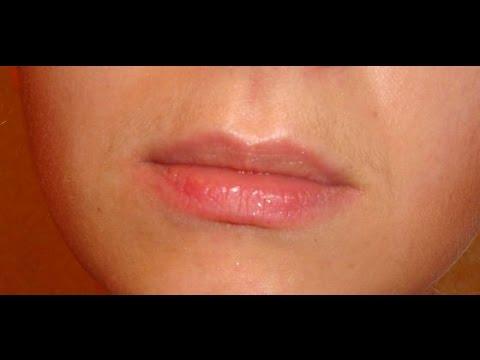 У девушки усы как избавиться навсегда в  328