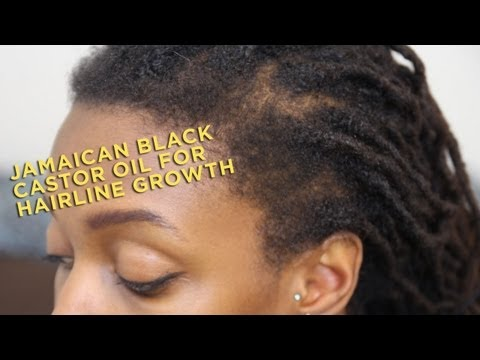 Product Review: Jamaican Black Castor Oil for Hairline Growth