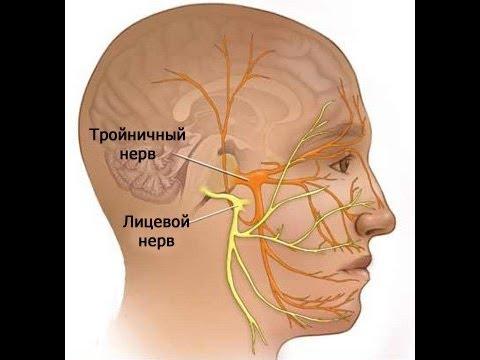 Лечение лицевого тройничного нерва в домашних условиях 685