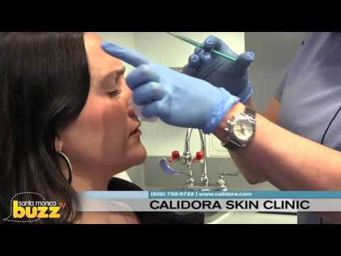 "The Local Buzz 247 features ""Calidora Skin Clinic"" Santa Monica"