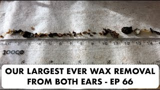 OUR LARGEST EVER EAR WAX REMOVAL FROM BOTH EARS - EP 66